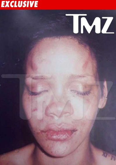 Rihanna beating